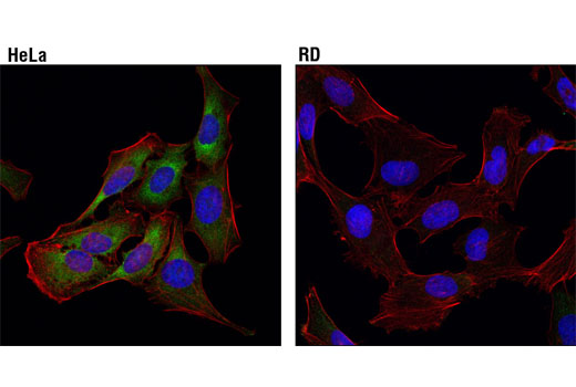Confocal immunofluorescent analysis of HeLa (higher expression, upper) and RD (lower expression, lower) cells using eIF4B (1F5) Mouse mAb (green). Actin filaments were labeled with DyLight™ 554 Phalloidin #13054 (red). Blue pseudocolor = DRAQ5<sup>®</sup> #4084 (fluorescent DNA dye).