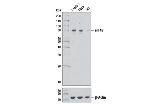 Western blot analysis of extracts from PANC-1, HeLa, and RD cells using eIF4B (1F5) Mouse mAb (upper) and β-Actin (D6A8) Rabbit mAb #8457 (lower).