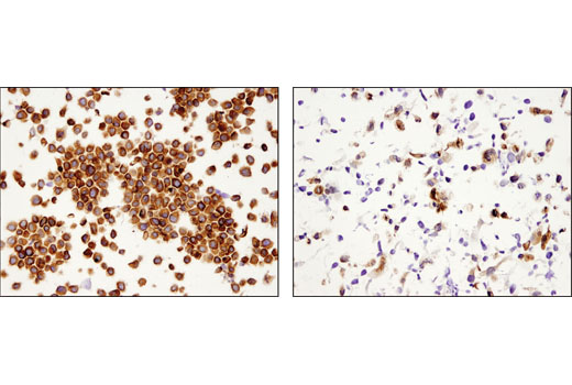 Immunohistochemical analysis of paraffin-embedded HeLa (left) and RD (right) cell pellets using eIF4B (1F5) Mouse mAb.