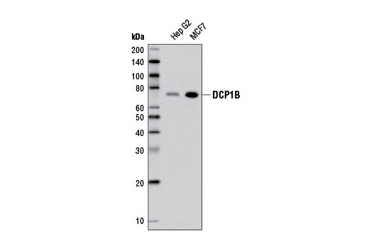 Western blot analysis of extracts from Hep G2 and MCF7 cells using DCP1B (D2P9W) Rabbit mAb.