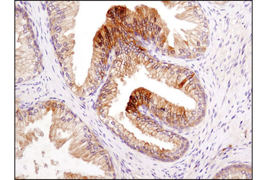 Immunohistochemical analysis of paraffin-embedded human prostate carcinoma using LKB1 (D60C5F10) Rabbit mAb (IHC Formulated).