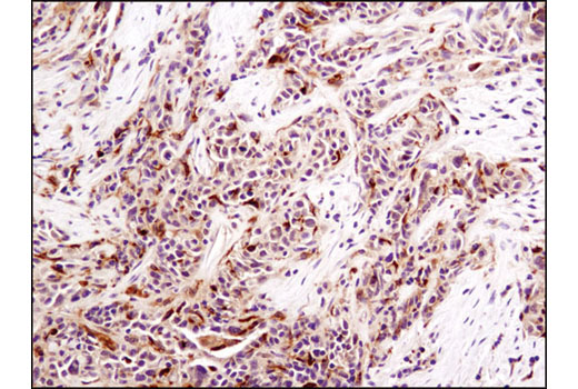Immunohistochemical analysis of paraffin-embedded human ovarian serous carcinoma using LKB1 (D60C5F10) Rabbit mAb (IHC Formulated).