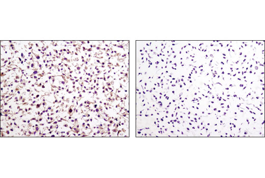 Immunohistochemical analysis of paraffin-embedded cell pellets, LKB1 positive COS-7 (left) and LKB1 negative A549 (right), using LKB1 (D60C5F10) Rabbit mAb (IHC-Formulated).