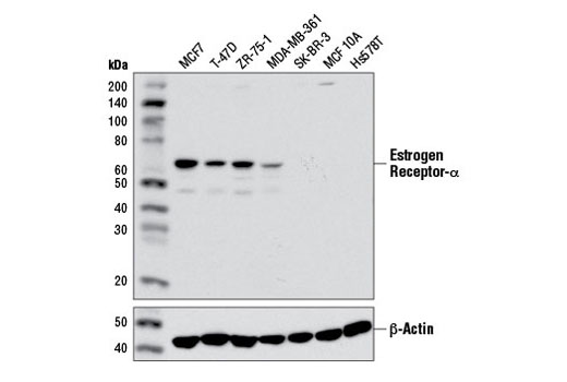 Western blot analysis of extracts from various cell lines using Estrogen Receptor α (D6R2W) Rabbit mAb (upper) and β-Actin (D6A8) Rabbit mAb #8457 (lower).