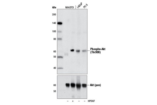 Western blot analysis of extracts from NIH/3T3 cells, untreated (-) or treated with Human Platelet-Derived Growth Factor AA (hPDGF-AA) #8913 (100 ng/ml, 5 min; +), and untreated (-) LNCaP and PC-3 cells, using Phospho-Akt (Thr308) (D25E6) XP<sup>®</sup> Rabbit mAb (upper) or Akt (pan) (C67E7) Rabbit mAb #4691 (lower).