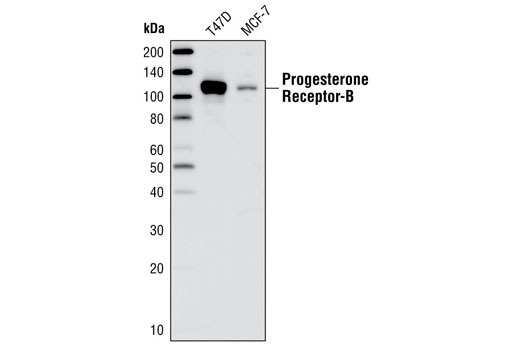 Western blot analysis of extracts from T47D and MCF-7 cells using Progesterone Receptor B Antibody.