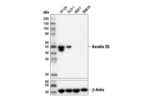 Western blot analysis of extracts from various cell lines using Keratin 20 (D9Z1Z) XP<sup>®</sup> Rabbit mAb (upper) or β-Actin (D6A8) Rabbit mAb #8547 (lower).