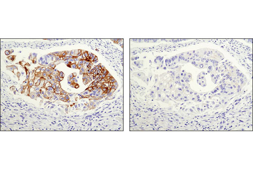 Immunohistochemical analysis of paraffin-embedded human colon carcinoma using Keratin 20 (D9Z1Z) XP<sup>®</sup> Rabbit mAb in the presence of control peptide (left) or antigen-specific peptide (right).