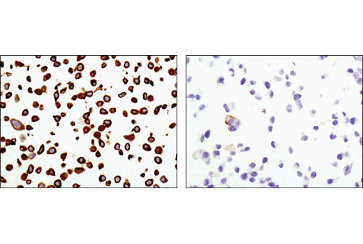 Immunohistochemical analysis of paraffin-embedded HT-29 (left) or MCF7 (right) cell pellets using Keratin 20 (D9Z1Z) XP<sup>®</sup> Rabbit mAb.