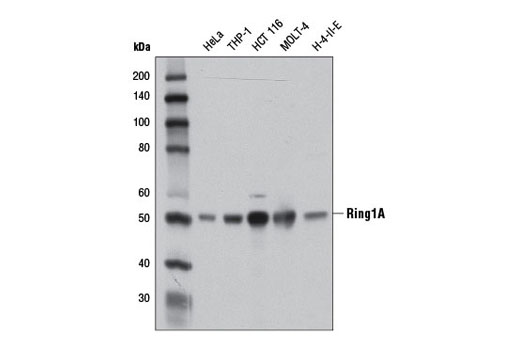 Western blot analysis of extracts from various cell lines using Ring1A (D2P4D) Rabbit mAb.