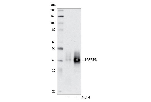 Western blot analysis of concentrated conditioned media from serum-starved A-431 cells, untreated (-) or treated with Human Insulin-like Growth Factor I (hIGF-I) #8917 (100 nM, 12 hr; +), using IGFBP3 Antibody.
