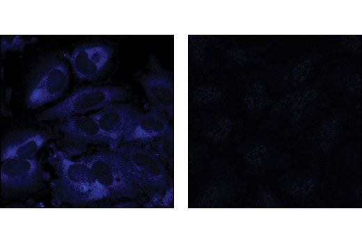 Confocal immunofluorescent analysis of HeLa cells treated with 20% serum (left) or with Rapamycin, Wortmannin and U0126 inhibitors (right) using Phospho-S6 Ribosomal Protein (Ser235/236) (D57.2.2E) XP<sup>®</sup> Rabbit mAb (Alexa Fluor<sup>®</sup> 647 Conjugate) #4851.