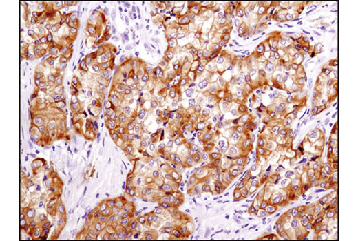 Immunohistochemical analysis of paraffin-embedded human papillary renal cell carcinoma using Integrin β3 (D7X3P) XP<sup>®</sup> Rabbit mAb.