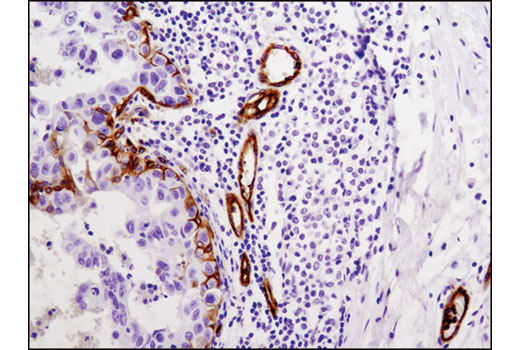 Immunohistochemical analysis of paraffin-embedded human breast carcinoma using Integrin β3 (D7X3P) XP<sup>®</sup> Rabbit mAb.
