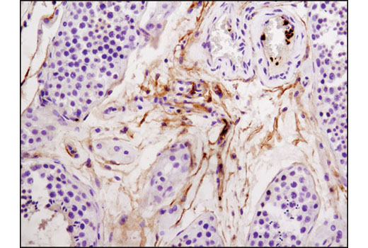 Immunohistochemical analysis of paraffin-embedded human testes using Integrin β3 (D7X3P) XP<sup>®</sup> Rabbit mAb.