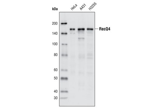 Rat 3'-5' Dna Helicase Activity - count 8