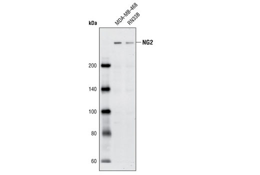 Western blot analysis of extracts from MDA-MB-468 and RN33B cells using NG2 Antibody.