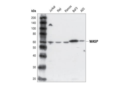 Western blot analysis of extracts from various cell lines, using WASP Antibody.