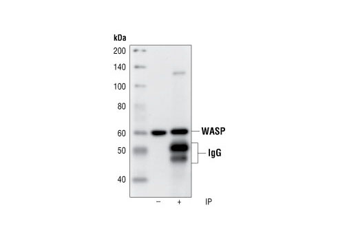 Polyclonal Antibody Immunoprecipitation Actin Polymerization And/Or Depolymerization