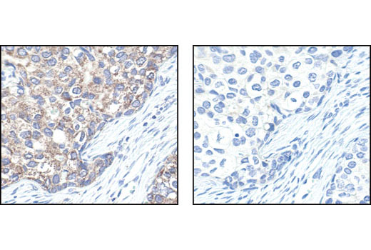 Immunohistochemical analysis of paraffin-embedded human breast carcinoma, using VDAC Antibody in the presence of control peptide (left) or antigen-specific peptide (right).