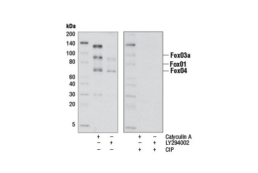 Western blot analysis of extracts from Jurkat cells treated with either Calyculin A (#9902) or LY294002 (#9901) using Phospho-FoxO1 (Thr24)/(FoxO3a (Thr32)/FoxO4 (Thr28) (4G6) Rabbit mAb. The phospho-specificity of the antibody was verified by treating the membrane in the absence (-) or presence (-) of calf intestinal phosphatase (CIP) after western transfer.