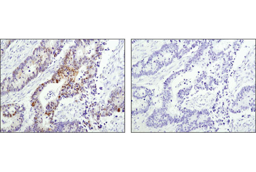Immunohistochemical analysis of paraffin-embedded human colon carcinoma using Wee1 (D10D2) Rabbit mAb in the presence of control peptide (left) or antigen-specific peptide (right).