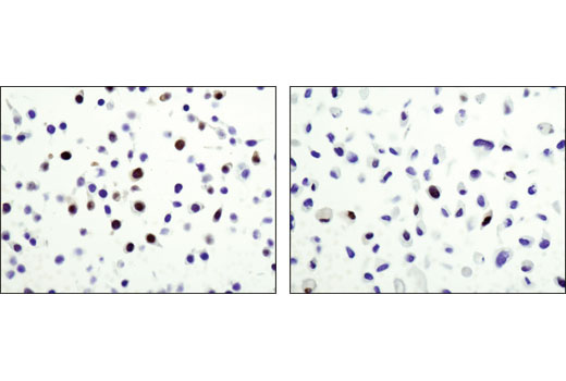 Immunohistochemical analysis of paraffin-embedded HT-29 (left) or PC-3 (right) cell pellets using Wee1 (D10D2) Rabbit mAb.