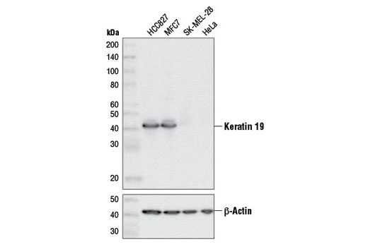Western blot analysis of extracts from various cell lines using Keratin 19 (D7F7W) Rabbit mAb (upper) or β-Actin (D6A8) Rabbit mAb #8457 (lower).