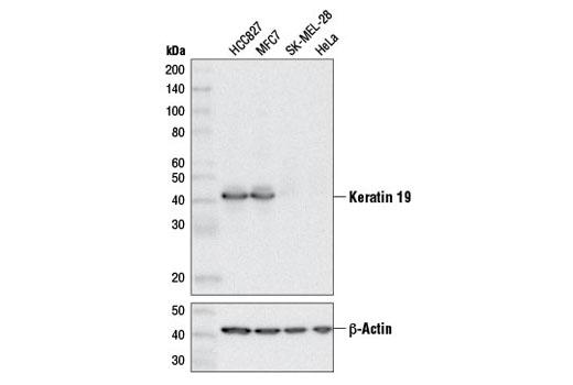 Monoclonal Antibody - Keratin 19 (D7F7W) Rabbit mAb, UniProt ID P08727, Entrez ID 3880 #13092 - Cytoskeletal Signaling