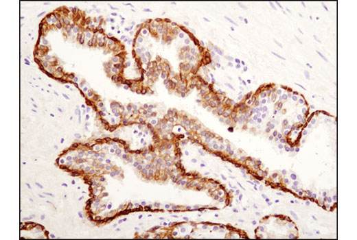 Immunohistochemical analysis of paraffin-embedded human prostate carcinoma using Keratin 19 (D7F7W) Rabbit mAb.