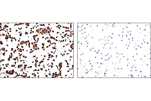 Immunohistochemical analysis of paraffin-embedded HCC827 (positive, left) or SK-MEL-28 (negative, right) cell pellets using Keratin 19 (D7F7W) Rabbit mAb.