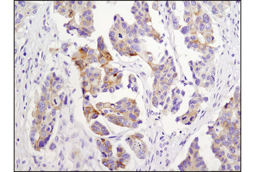 Immunohistochemical analysis of paraffin-embedded human ovarian carcinoma using N-Cadherin (D4R1H) XP<sup>®</sup> Rabbit mAb.