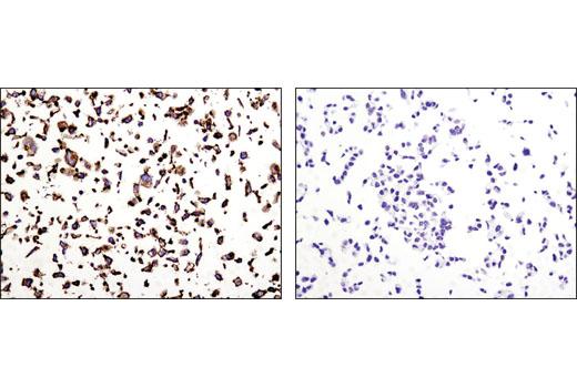 Monoclonal Antibody - N-Cadherin (D4R1H) XP® Rabbit mAb, UniProt ID P19022, Entrez ID 1000 #13116, Cadherinn