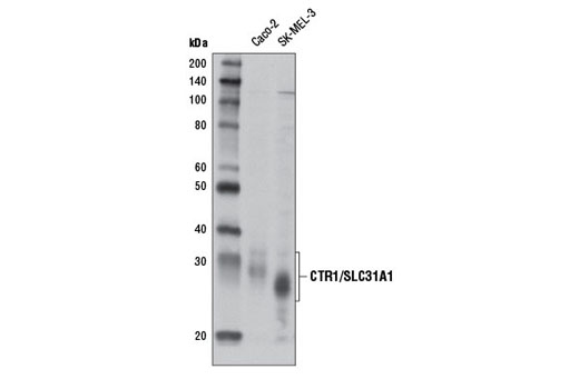 Polyclonal Antibody Western Blotting Ion Transmembrane Transporter Activity