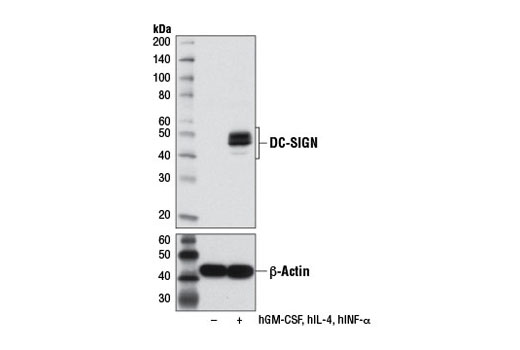 Western blot analysis of extracts from MUTZ-3 cells, undifferentiated (-) or differentiated (+) into interstitial dendritic cells with Human Granulocyte Macrophage Colony Stimulating Factor (hGM-CSF) #8922 (100 ng/ml), Human Interleukin-4 (hIL-4) #8919 (100 ng/ml), and Human Tumor Necrosis Factor-α (hTNF-α) #8902 (2.5 ng/ml) for 7 d, using DC-SIGN (D7F5C) XP<sup>®</sup> (upper) or β-Actin (D6A8) Rabbit mAb #8457 (lower).