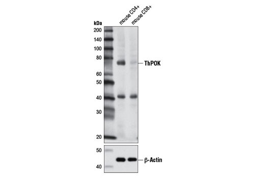 Western blot analysis of mouse CD4+ T cells and mouse CD8+ T cells using ThPOK (D9V5T) Rabbit mAb (upper) and β-Actin (D6A8) Rabbit mAb #8457 (lower).