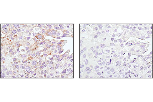 Immunohistochemical analysis of paraffin-embedded human breast carcinoma using SirT3 (C7E3) Rabbit mAb in the presence of control peptide (left) or antigen specific peptide (right).