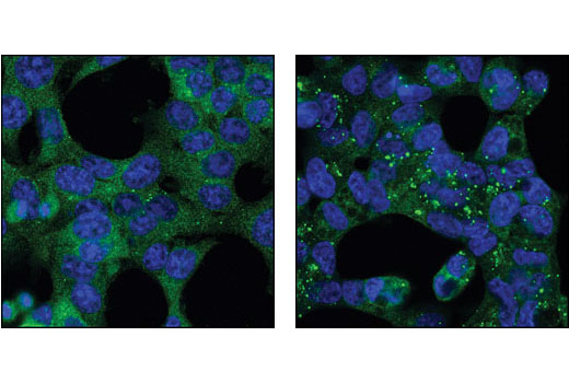Confocal immunofluorescent analysis of HCT-116 cells, untreated (left) or chloroquine-treated (right), using Atg12 Antibody (Human Specific) (green). Blue pseudocolor = DRAQ5<sup>®</sup> #4084 (fluorescent DNA dye).