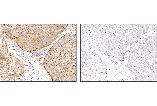 Immunohistochemical analysis of paraffin-embedded squamous cell lung carcinoma using LAMTOR4/C7orf59 (D4P6O) Rabbit mAb in the presence of control peptide (left) or antigen-specific peptide (right).