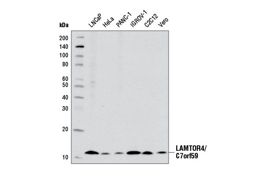 Western blot analysis of extracts from various cell lines using LAMTOR4/C7orf59 (D4P6O) Rabbit mAb.