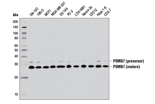 Western blot analysis of extracts from various cell lines using PSMB7 (E1L5H) Rabbit mAb.