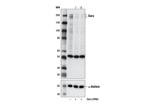 Monoclonal Antibody - Sara (D5X4F) Rabbit mAb - Immunoprecipitation, Western Blotting, UniProt ID O95405, Entrez ID 9372 #13285 - Developmental Biology