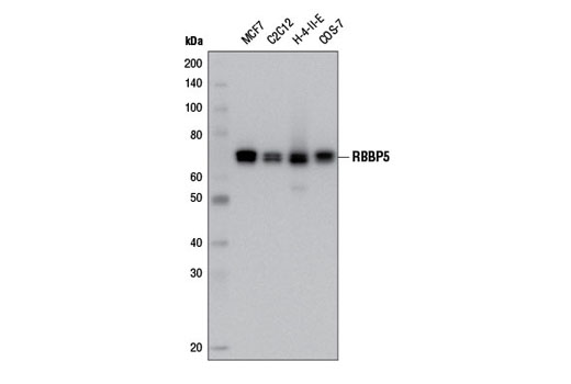 Western blot analysis of extracts from various cell lines using RBBP5 (D3I6P) Rabbit mAb.