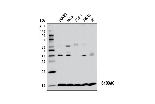 Western blot analysis of extracts from various cell lines using S100A6 (D3H3W) Rabbit mAb.