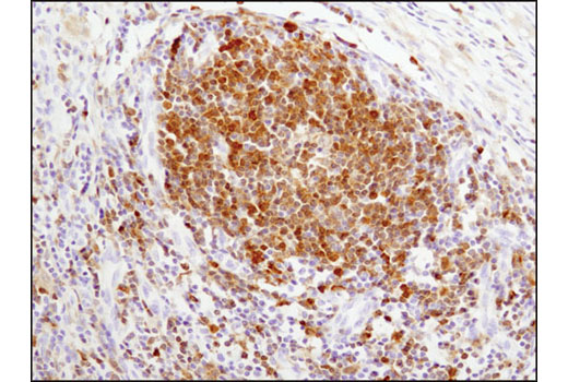 Immunohistochemical analysis of paraffin-embedded human lymph node using Syk (D3Z1E) XP<sup>® </sup>Rabbit mAb.