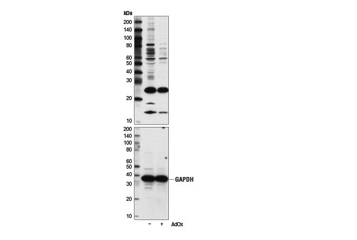 Western Blotting Image 1: Symmetric Di-Methyl Arginine Motif [sdme-RG] MultiMab™ Rabbit mAb mix