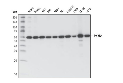 Western blot analysis of extracts from various cell types using PKM1/2 (C103A3) Rabbit mAb.