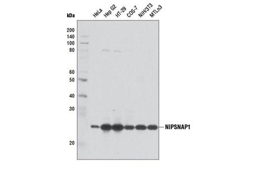 Monoclonal Antibody - NIPSNAP1 (D1Y6S) Rabbit mAb - Immunoprecipitation, Western Blotting, UniProt ID Q9BPW8, Entrez ID 8508 #13226, Ca / Camp / Lipid Signaling
