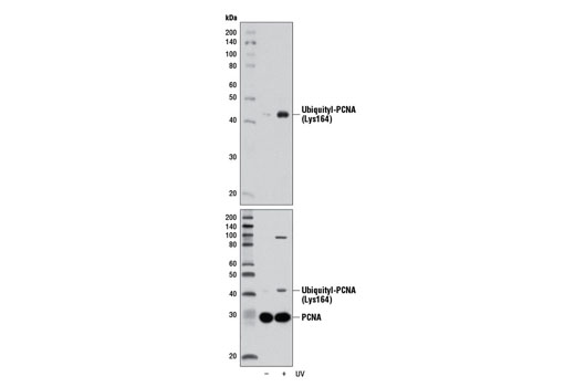 Western blot analysis of extracts from HeLa cells, untreated (-) or UV-treated (100 mJ, 1 hr recovery; +), using Ubiquityl-PCNA (Lys164) (D5C7P) Rabbit mAb (upper) or PCNA (PC10) Mouse mAb #2586 (lower).