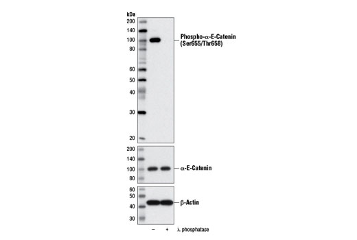 Western blot analysis of extracts from NCI-H3255 cells, untreated (-) or λ phosphatase-treated (+), using Phospho-α-E-Catenin (Ser655/Thr658) Antibody (upper), α-E-Catenin (23B2) Rabbit mAb #3240 (middle) and β-Actin (D6A8) Rabbit mAb #8457 (lower).